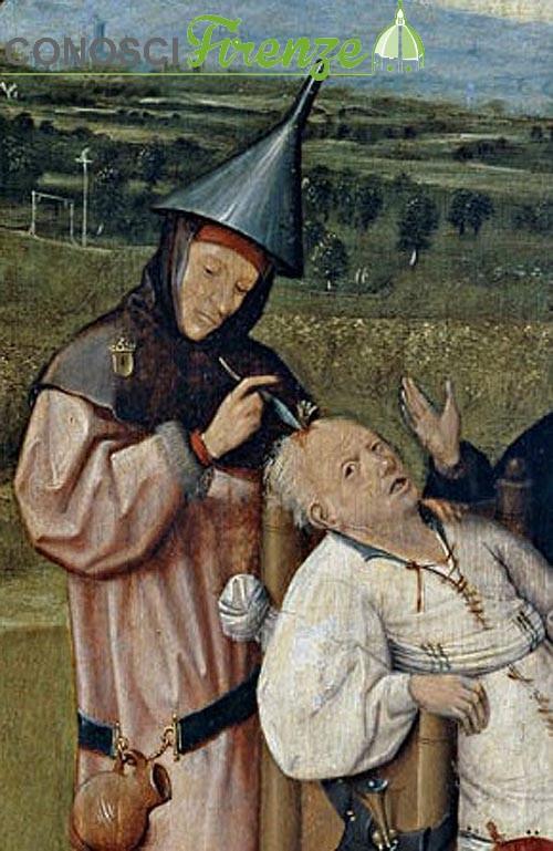 Il quadro di fine Quattrocento di Hieronymus Bosch chiamato Estrazione della pietra della follia mostra una fase dell'intervento nel quale uno stolto si fa convincere da un ciarlatano a farsi togliere dalla testa la pietra della follia.